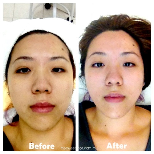 the retreat clinic sublime lift - before after