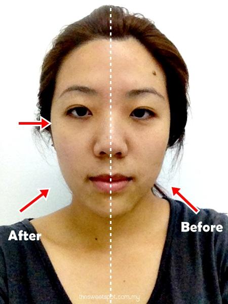the retreat clinic sublime lift - half face